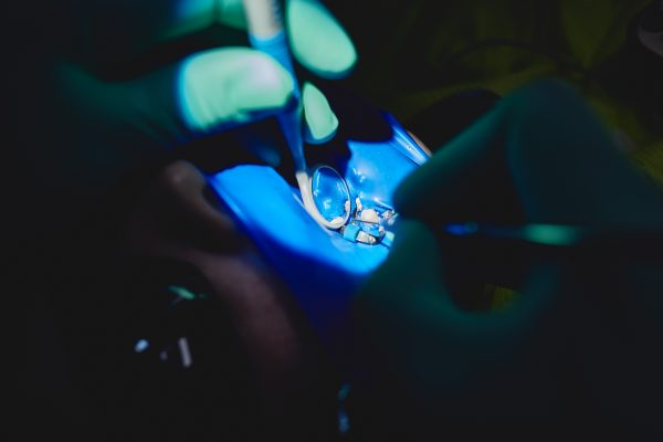 Etapele tratamentului endodontic