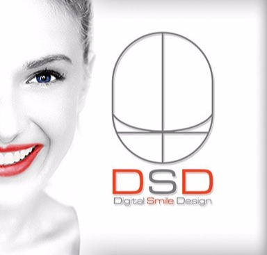 Ce reprezintă DSD?