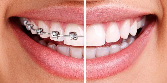 aparate dentare 2